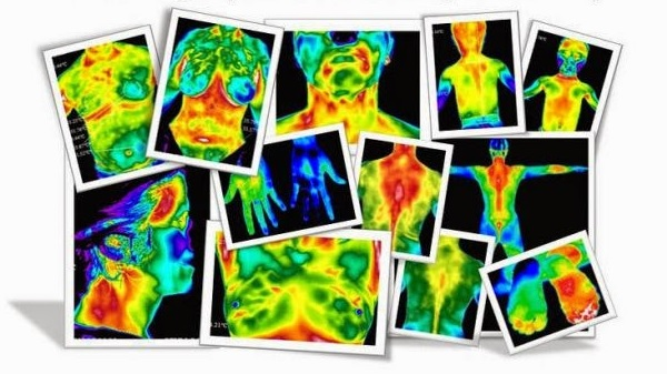 Thermography: 50 shades of …