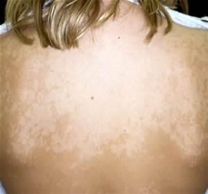Why Won't My Skin Tan?